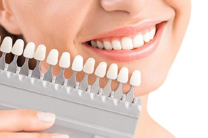 Bạn sẽ phải chờ từ 7 - 10 ngày để nha sĩ chế tác mão răng sứ gần giống thật nhất
