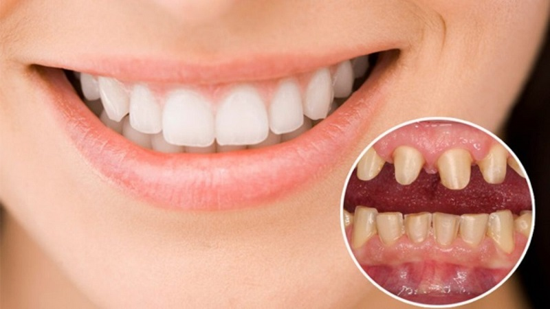 Phương pháp bọc răng sứ thẩm mỹ
