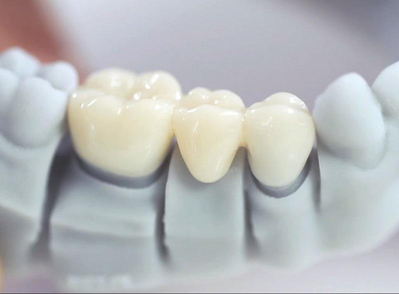 Loại răng sứ là yếu tố ảnh hưởng trực tiếp đến bọc sứ răng giá bao nhiêu