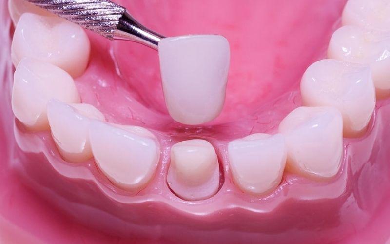 Có nên bọc răng sứ khi mang thai hay không là thắc mắc chung của nhiều người