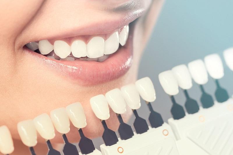 Răng sau khi dán sứ sẽ có vẻ ngoài tự nhiên, đồng đều