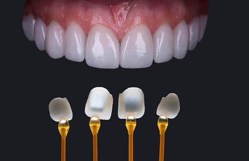 Phương pháp dán sứ chỉ dành cho những hàm răng ít khuyết điểm