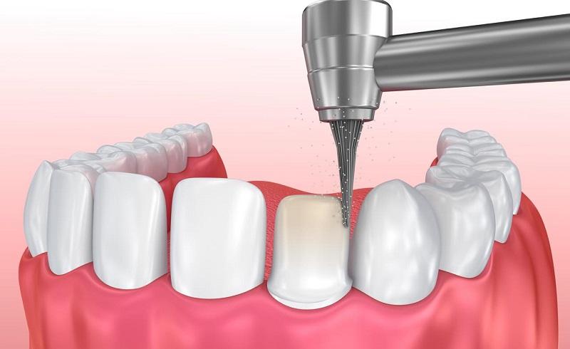 Bọc răng sứ không cần mài răng chỉ được áp dụng trong một vài trường hợp nhất định