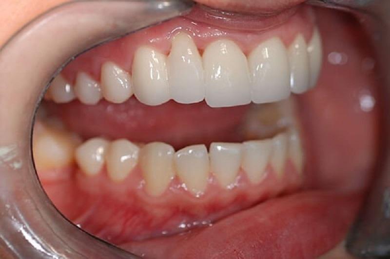 Quy trình trồng răng sứ được thực hiện cẩn thận, tỉ mỉ