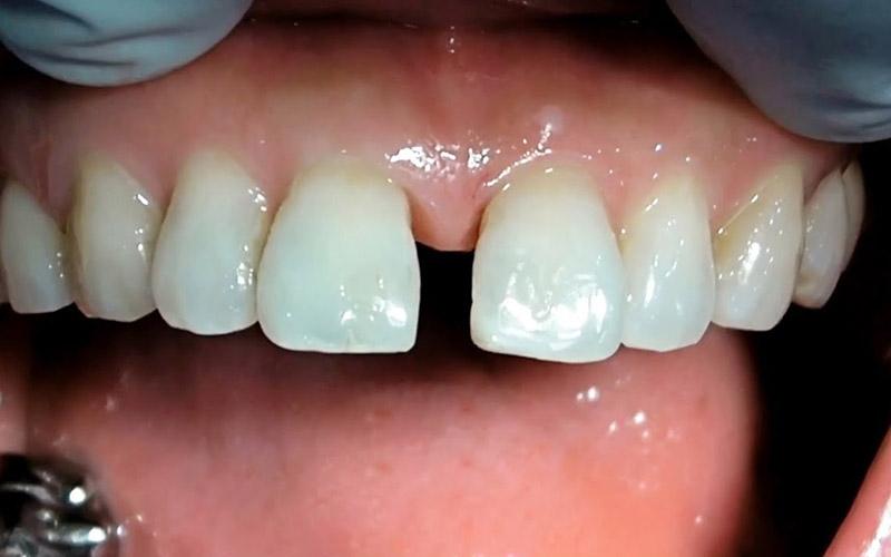 Bệnh nhân bị răng thưa nên áp dụng phương pháp bọc sứ cho răng