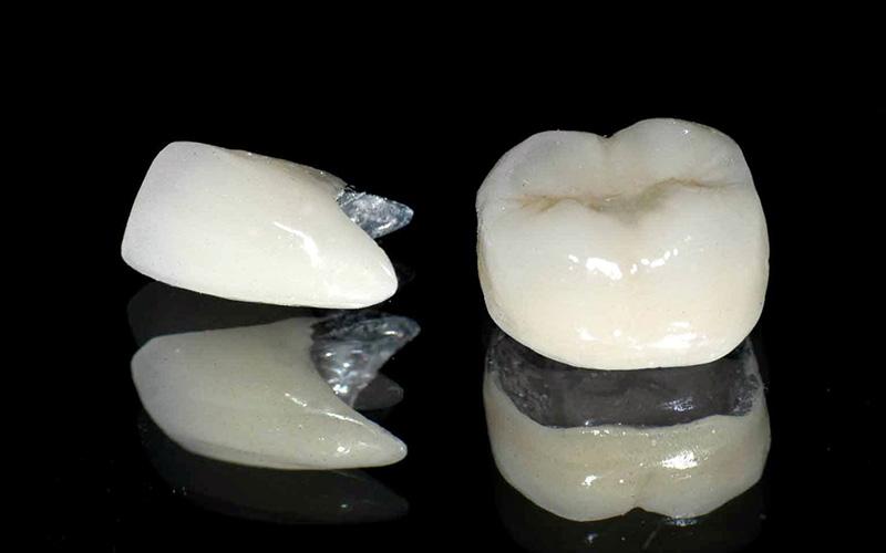 Răng sứ kim loại có độ chịu lực tốt