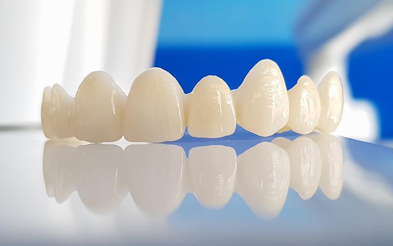 Răng toàn sứ có màu sắc giống với răng thật và tuổi thọ sử dụng cao