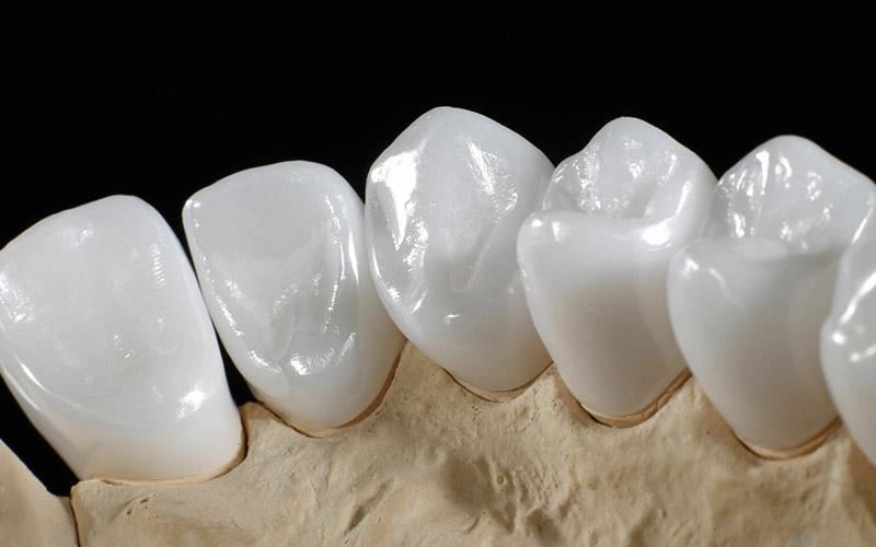 Bọc răng sứ trả góp giá bao nhiêu phụ thuộc vào loại răng mà bạn lựa chọn