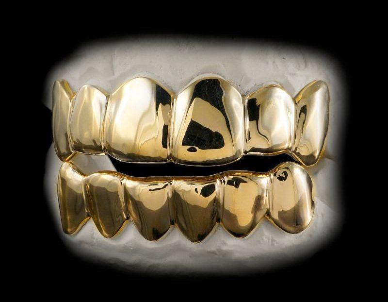 Bọc răng vàng cũng trải qua quy trình tương tự bọc răng sứ
