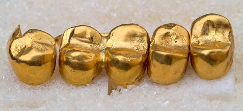 Chi phí bọc răng vàng còn phụ thuộc vào nhiều yếu tố khác
