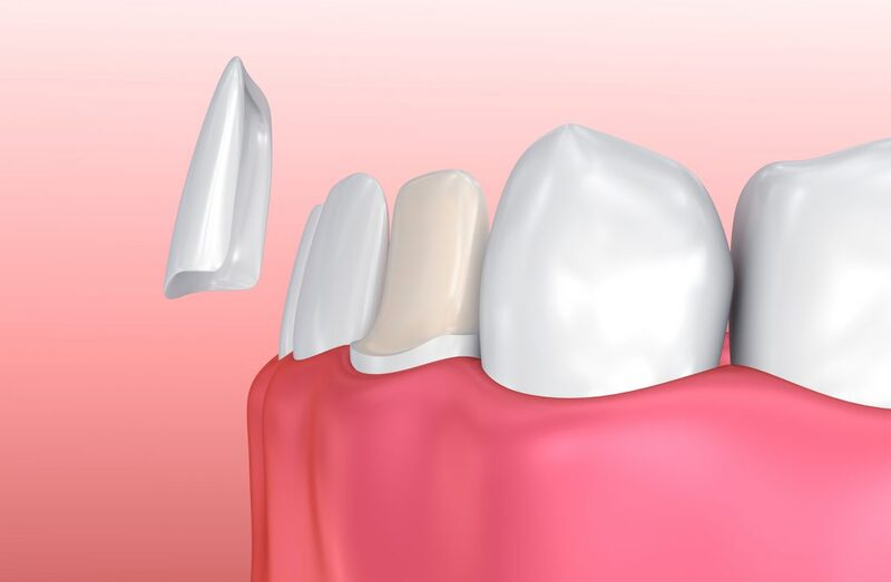 Bọc răng sứ veneer là phương pháp thẩm mỹ răng sở hữu nhiều ưu điểm