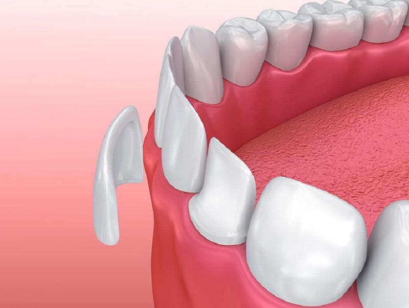Răng đảm bảo tính thẩm mỹ sau thực hiện