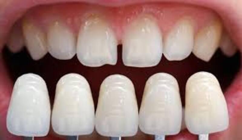 Giá răng sứ veneer phụ thuộc vào chất liệu sử dụng
