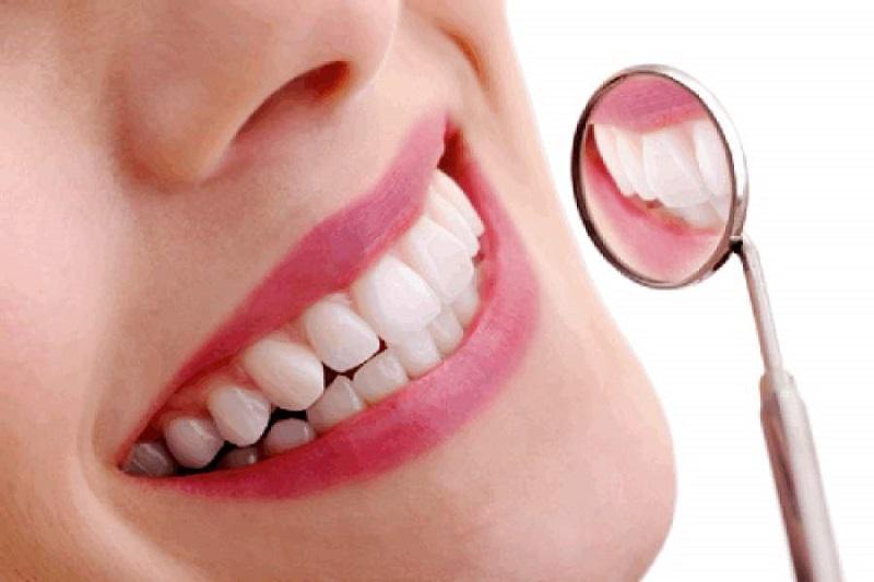Sở hữu hàm răng đẹp sau khi dán sứ