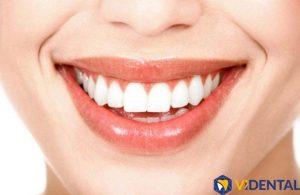 Bọc răng sứ cao cấp, đạt tiêu chuẩn Quốc tế tại Vidental