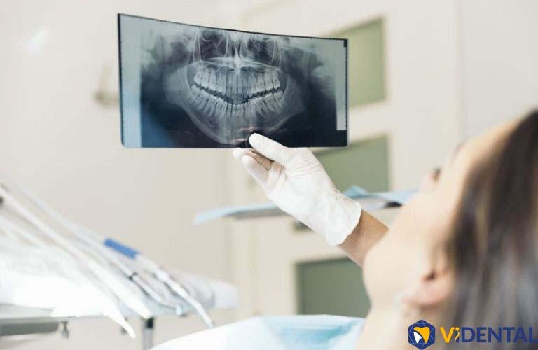 Phục hình răng tại Vidental, Bác sĩ sẽ chụp X-quang để rà soát chính xác mật độ xương và kích thước của xương hàm