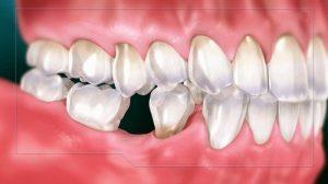 Tình trạng mất răng liệu có tự mọc được không là thắc mắc của nhiều người