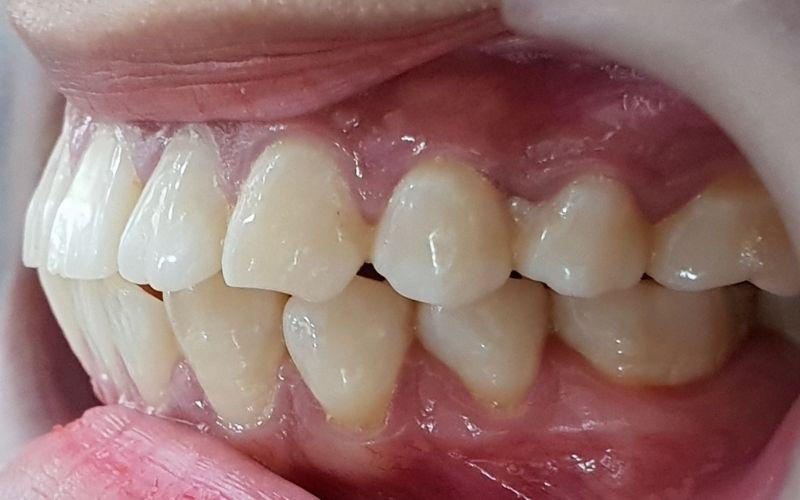 Khi nào nên bọc răng sứ, trường hợp răng bị hô, vẩu nên bọc sứ để đảm bảo tính thẩm mỹ và khả năng ăn nhai