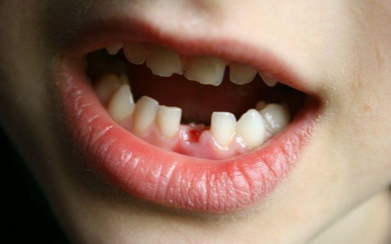 Khi bị mất răng bạn cũng có thể bọc sứ