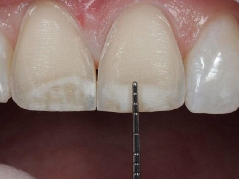 Mài răng bọc sứ là thao tác bắt buộc thực hiện trước khi bọc răng sứ