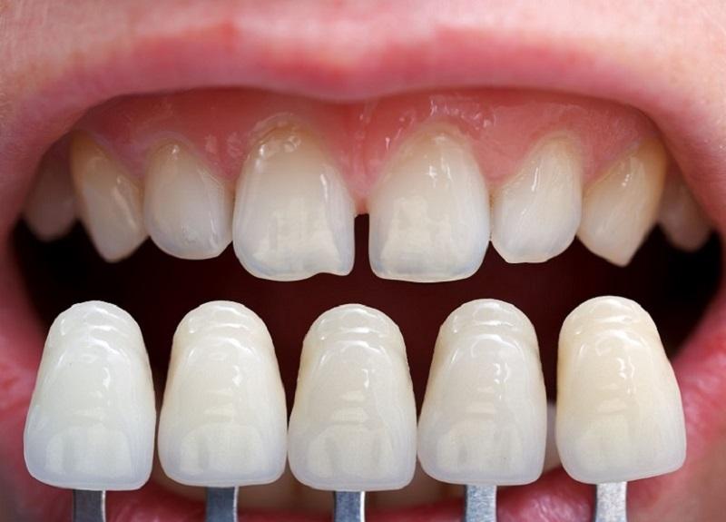 Răng mài phải đảm, bảo được tỷ lệ và giữ được tối đa răng thật