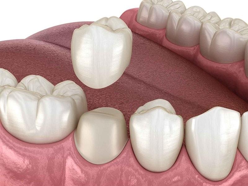 Người bệnh sau khi mài răng 2 - 3 ngày có thể ê buốt nhẹ