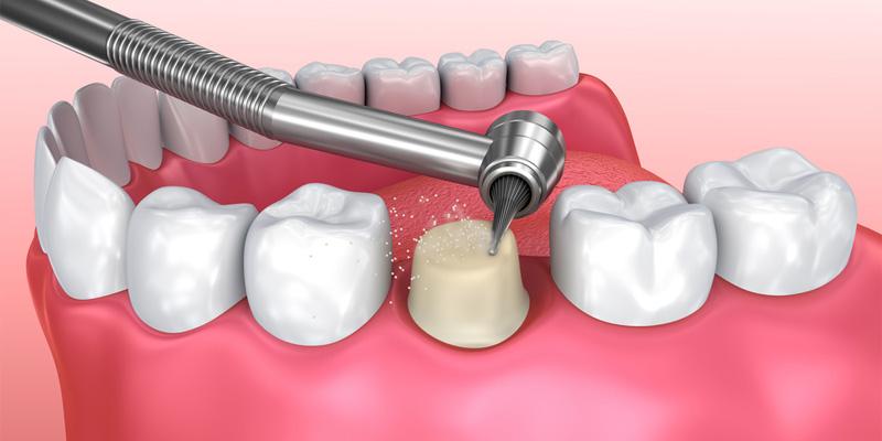 Tuân thủ những hướng dẫn của nha sĩ sau khi mài răng bọc sứ