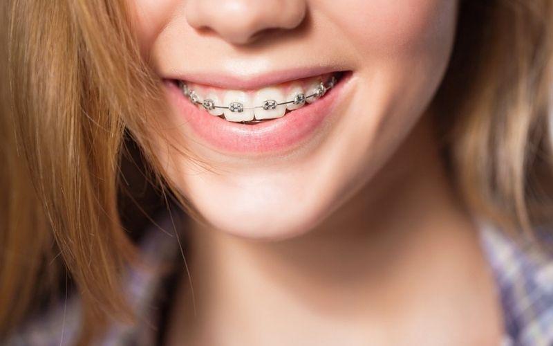 Việc niềng răng không xâm lấn và không gây tổn hại tới răng tự nhiên