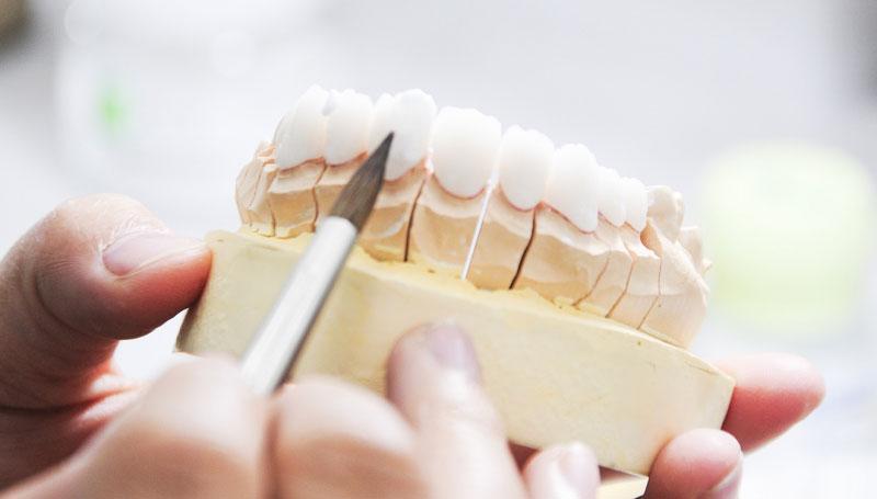 Lấy mẫu và thiết kế răng sao cho phù hợp nhất trước khi bọc răng sứ