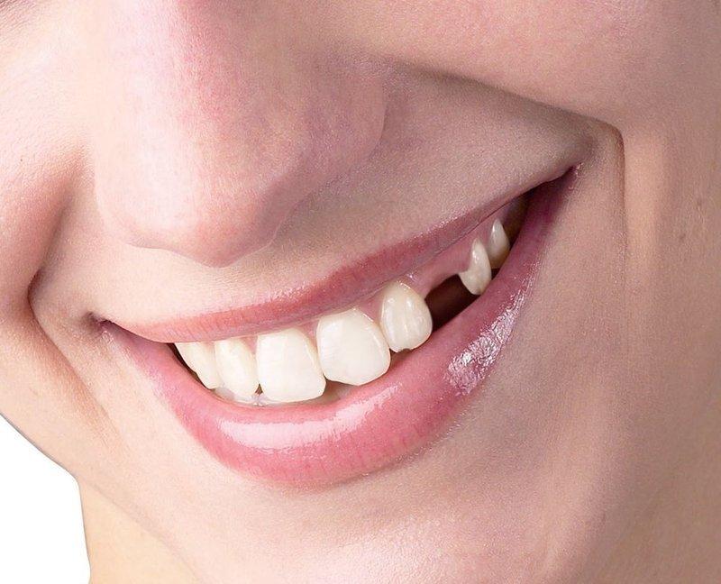 Trồng răng nanh khi bị mất là điều cần thiết