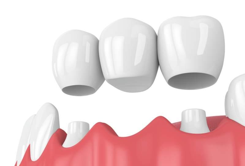 Cầu răng sứ chỉ phục hình phần trên của răng mà không có chân