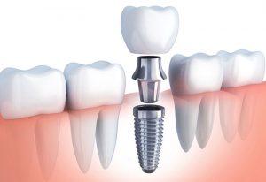 Trồng răng giả là phương pháp phục hình răng miệng có nhiều ưu điểm nhất định