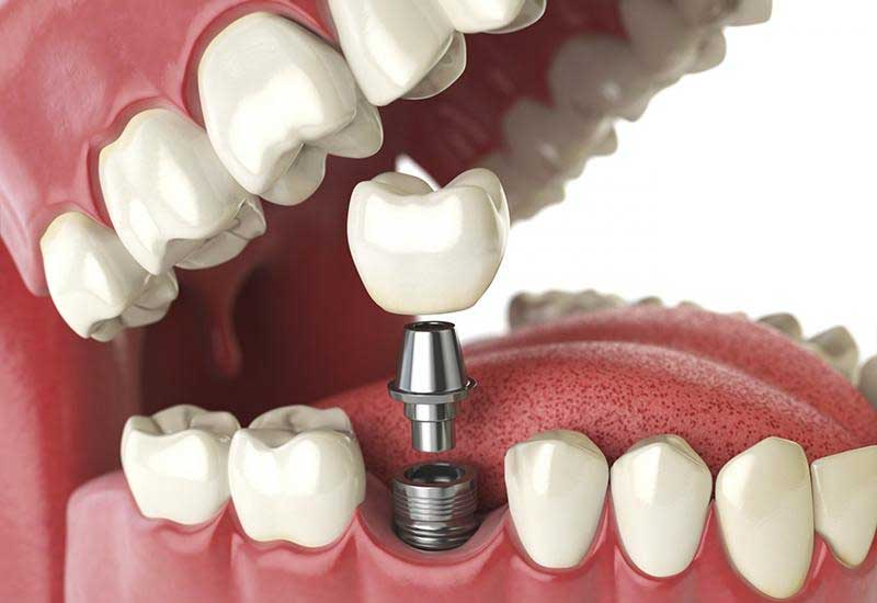 Hình ảnh mô phỏng phương pháp trồng răng implant