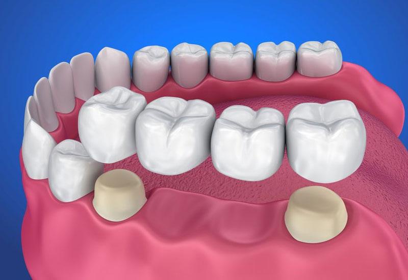 Hình ảnh mô mỏng phương pháp làm cầu răng sứ