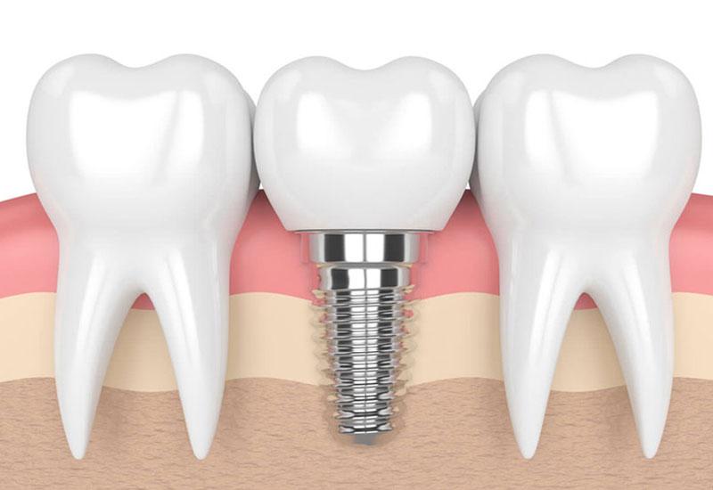 Trồng răng có thể hiểu đơn giản là thay thế răng thật bị mất hoặc gãy bằng răng giả
