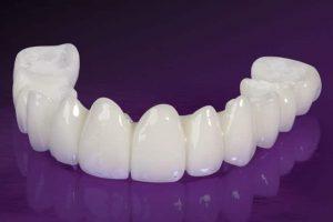 Trồng răng sứ là biện pháp phục hình răng miệng được nhiều người sử dụng