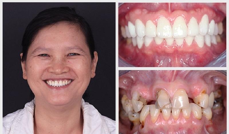 Lựa chọn nha khoa uy tín để phục hình răng chất lượng, an toàn