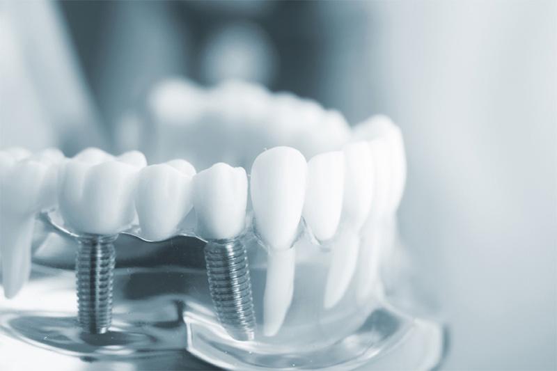Trồng răng implant là phương pháp hiện đại nhất hiện nay.