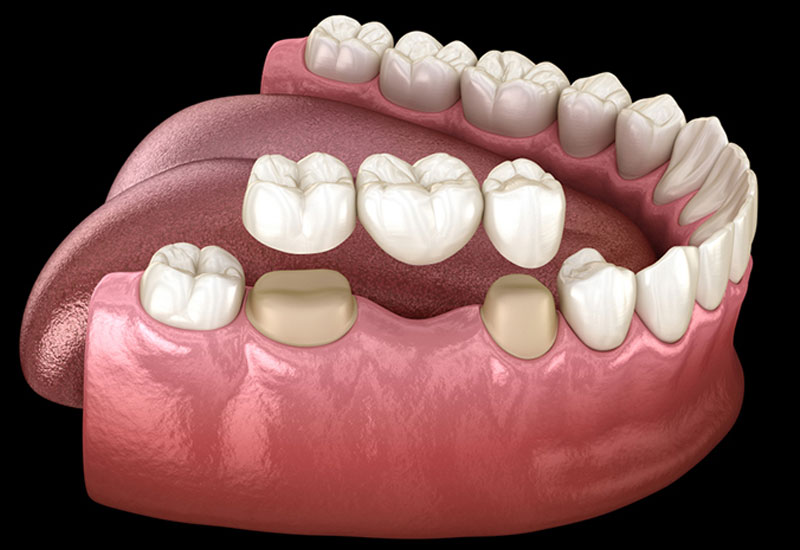 Làm cầu răng là phương pháp có thể áp dụng cho trường hợp mất một hoặc nhiều chiếc răng.