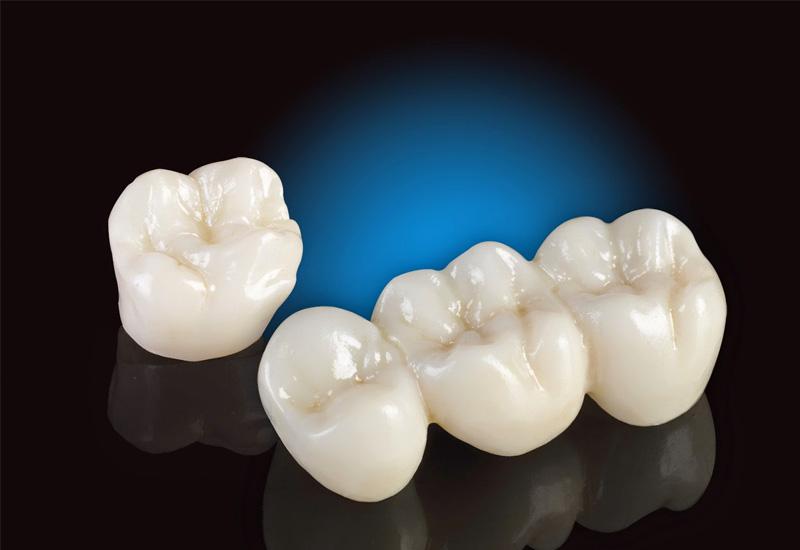 Trồng răng sứ là một biện pháp nha khoa thẩm mỹ rất phổ biến hiện nay