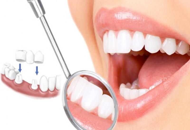 Trồng răng sứ là phương pháp mang lại tính thẩm mỹ cao.
