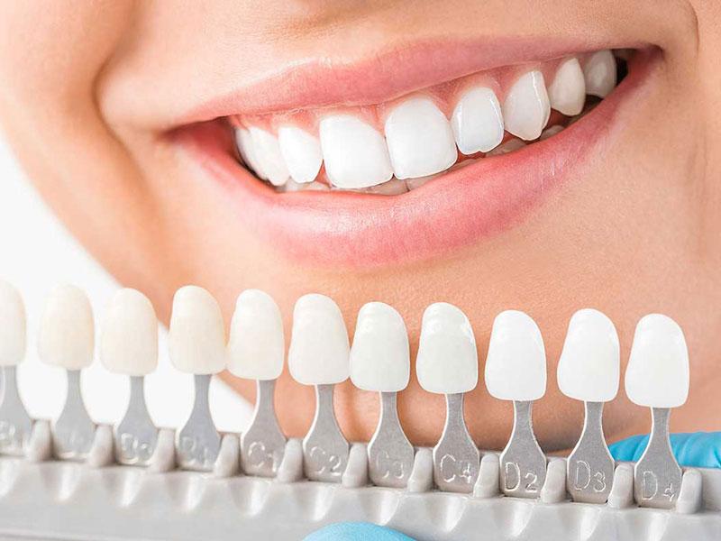 Bọc răng sứ cải thiện một số khuyết điểm về răng và nâng cao tính thẩm mỹ