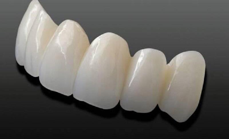 Bọc răng sứ giúp bạn có được hàm răng hoàn hảo như ý