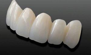 Bọc răng sứ cercon giá bao nhiêu, nên bọc loại nào và bọc ở đâu?