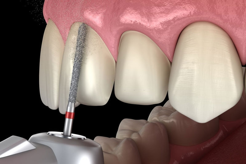 Quy trình bọc răng sứ được diễn ra nhanh chóng