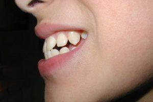Phương pháp bọc răng sứ cho răng hô giá bao nhiêu? Quy trình và địa chỉ thực hiện hiệu quả