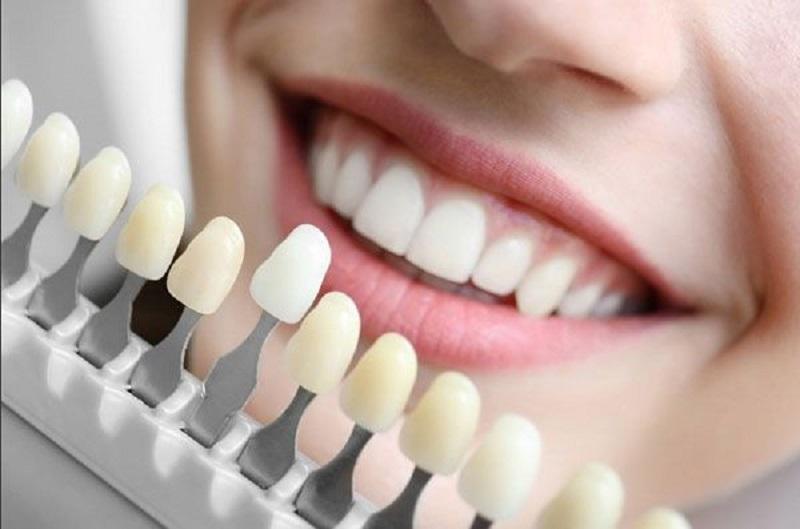 Bọc răng sứ titan được đánh giá là thích hợp cho tất cả các trường hợp