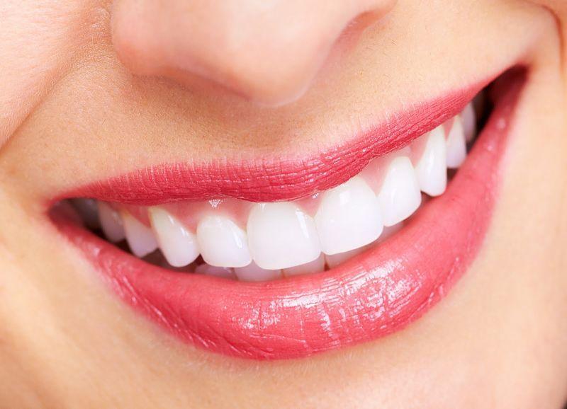 Răng bọc sứ titan thường không có được vẻ đẹp tự nhiên như bọc răng toàn sứ