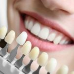 Bọc răng sứ titan có tốt không, nên thực hiện ở đâu hiệu quả?
