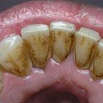 Cao răng là gì? Giải pháp loại bỏ và phòng ngừa hiệu quả